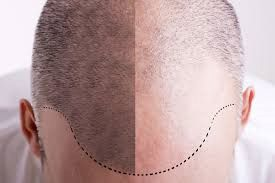 microinjerto o micropigmentacion